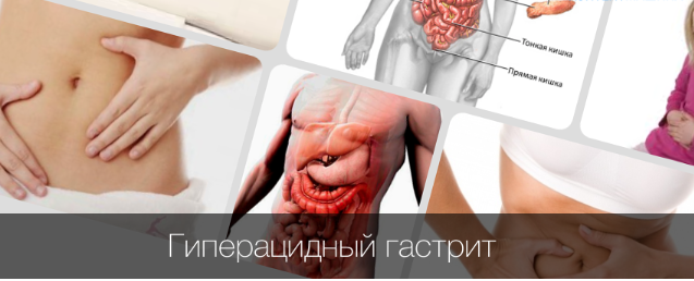 Гиперацидный гастрит: симптомы, способы лечения и профилактика