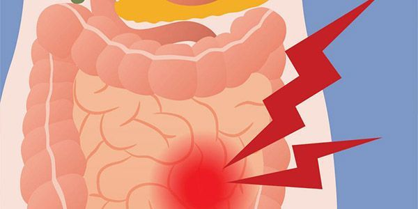 Жёлтый понос у взрослого: причины, способы лечения и профилактика