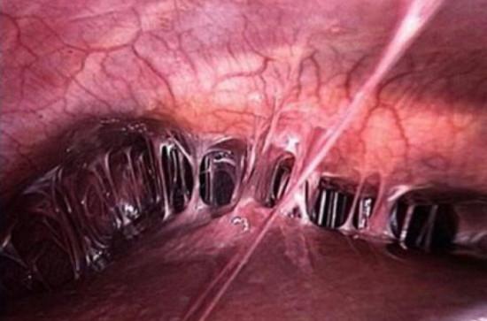 Спайки после аппендицита: что это такое, симптомы, спаечная болезнь через год после операции по удалению гнойного аппендикса, методы лечения