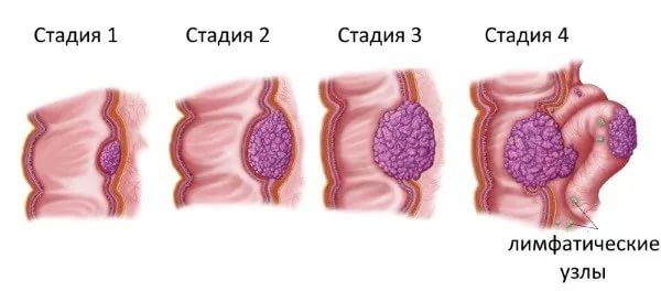 Опухоль кишечника: симптомы, виды, диагностика и профилактика