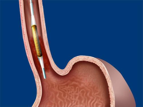 Стеноз пищевода: причины, симптомы и методики лечения